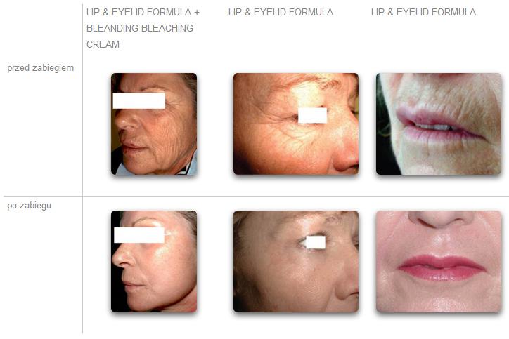 Lip-Eyelid-foto-przed-po
