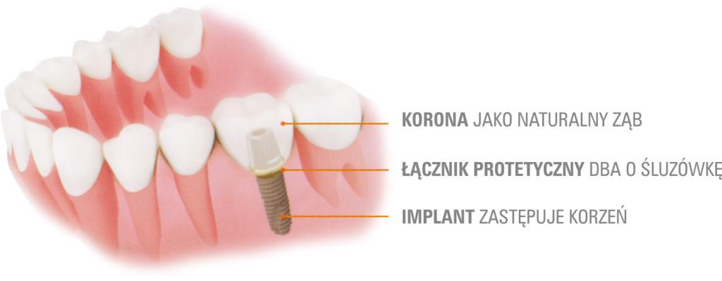 IMPLANTY zębowe tytanowe