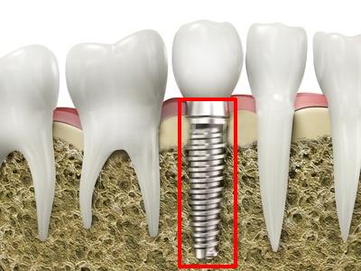 implanty zębów tytanowe - Warszawa, Babice