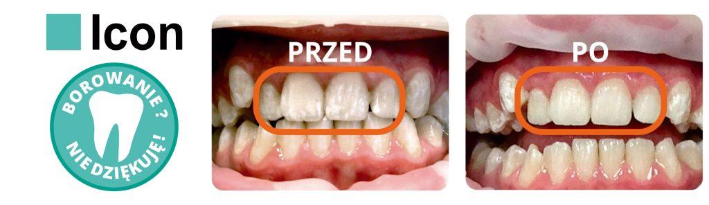 icon na zęby