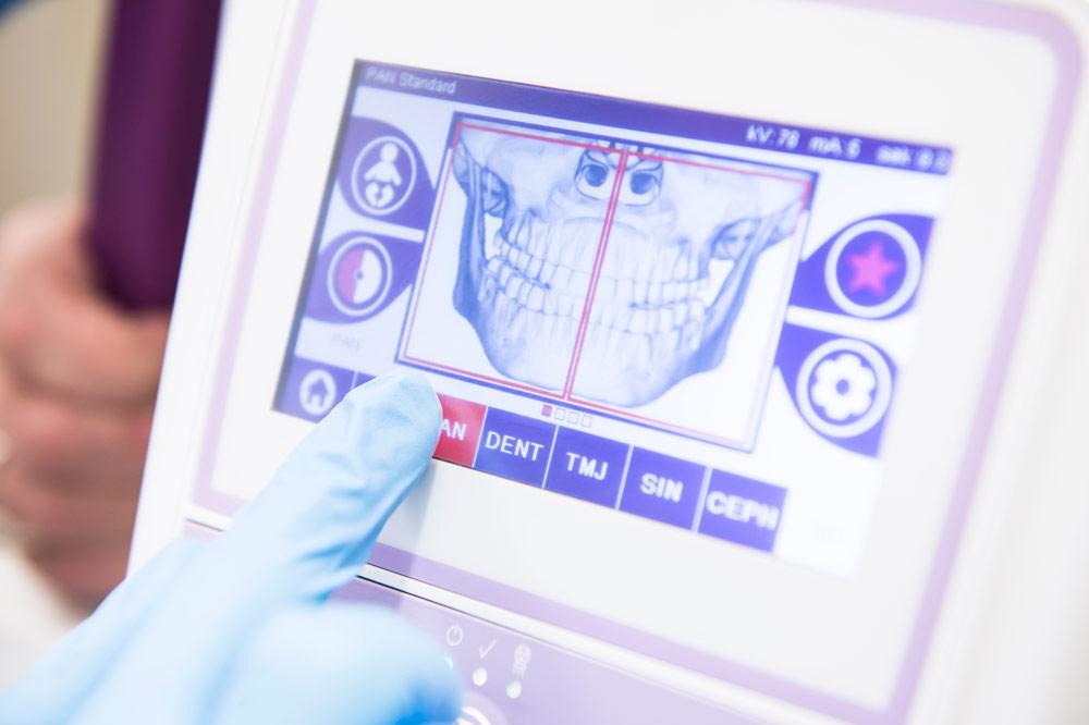Tomografia stomatologiczna 3D zębów