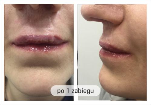 usta-porozszczepowe-po-1-zabiegu - Formmed