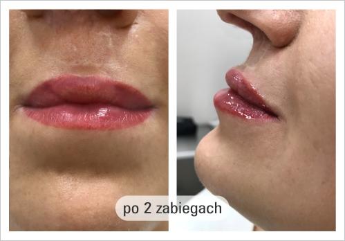 usta-porozszczepowe-po-2-zabiegach - Formmed