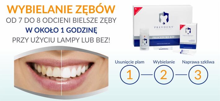 WYBIELANIE  zębów PrevDent Warszawa
